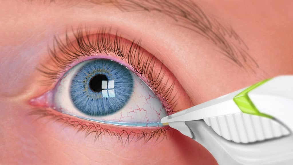 Torrance and Lomita Dry Eye Treatment - South Bay Eye Care