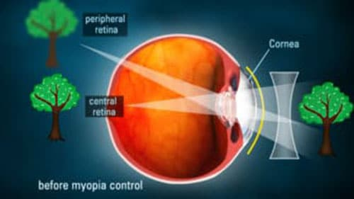South Bay Specialty Contacts - Myopia Control / Ortho kratology
